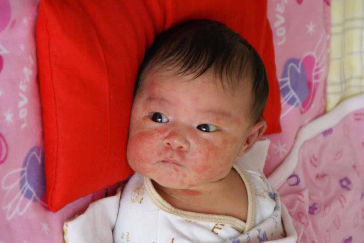 婴儿湿疹-一一的脚印